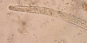 Parasitic Worm Increases Fertility in Women 1