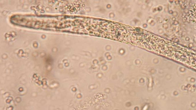 Parasitic Worm Increases Fertility in Women