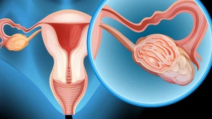 Ovarian Tissue Transplants to Help Conceive After Cancer