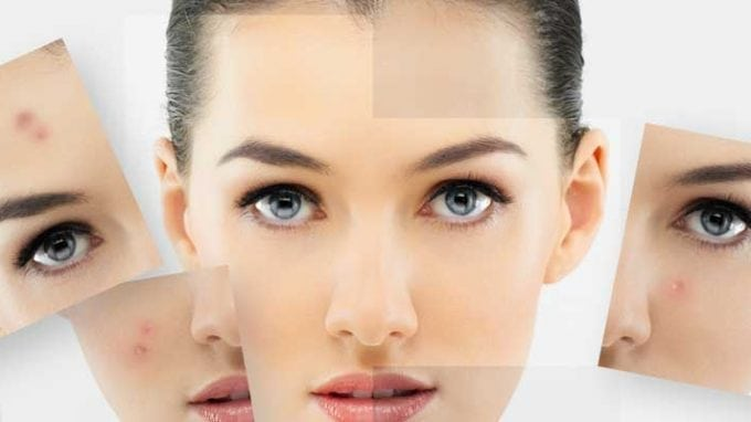 How to Deal With Acne Caused by Fertility Medications and Treatments
