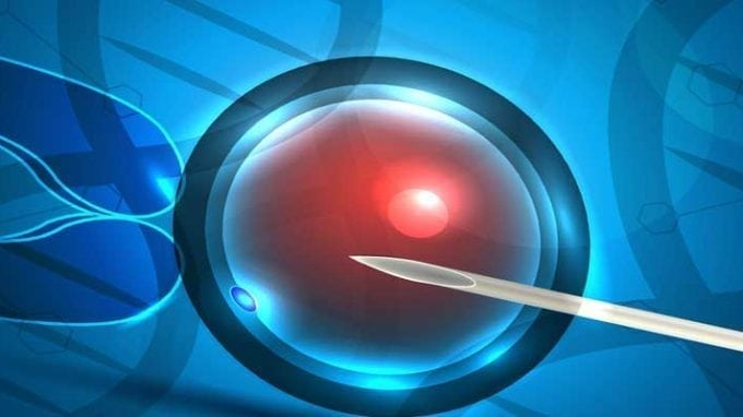 Genetic Pattern Gives Predictors of IVF Failure or Success