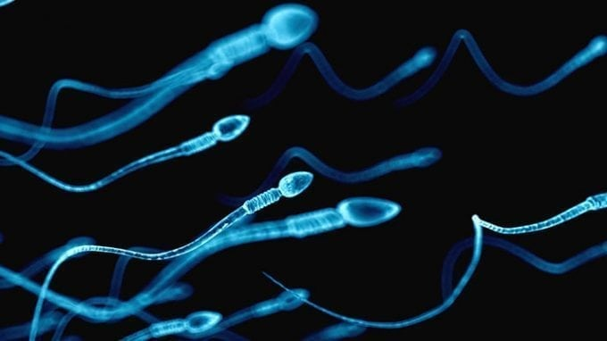 Sperm Binding Beads: A Future Fertility Aid