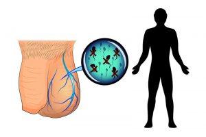 How Varicoceles Affect Male Fertility 1