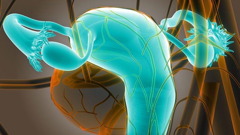 Fallopian Tube Infections, a Risk for Hydrosalpinx - FertilityTips.com