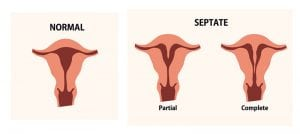The Impact a Septate Uterus Has on Women's Fertility
